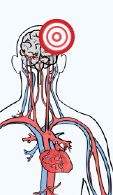 Color drawing of the cardiovascular system, chest up. There is a red bullseye on the upper left of the brain.