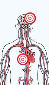 Color drawing of the cardiovascular system, midsection up. There is a red bullseye on both the brain and heart.