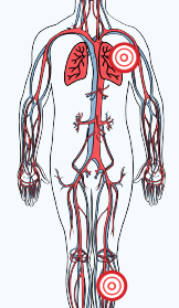 Color drawing of the cardiovascular system, neck down. There is a red bullseye on the left lung, and on the left leg.
